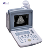 Ce Approved Portable Full Digital Ultrasound (WHYC30P)