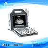 LCD Display Digital Laptop Ultrasound Scanner (WHYC60P)